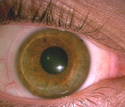 Scleral Lenses Arizona