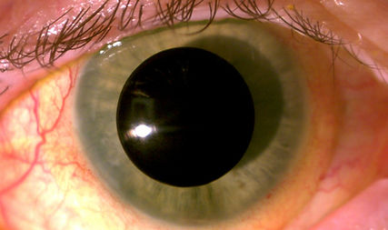 Occlusion Pupil.jpg