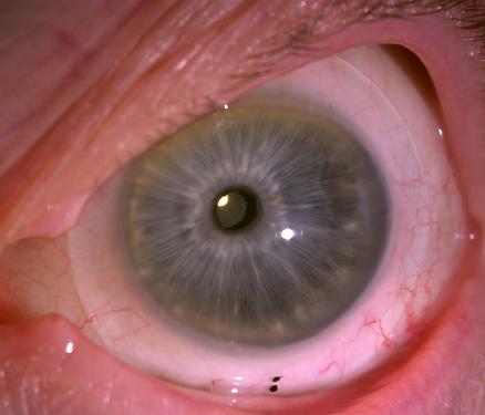 Scleral Lens for Keratoconus Arizona Scottsdale Dr. Caitlin Morrison.tif