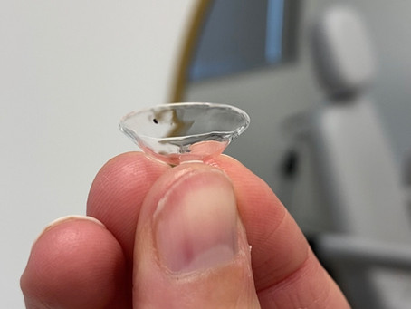 Can Scleral Lenses Treat My Dry Eye?
