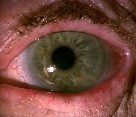 Scleral Lens For Dry Eye Arizona Scottsdale Dr. Morrison.jpg
