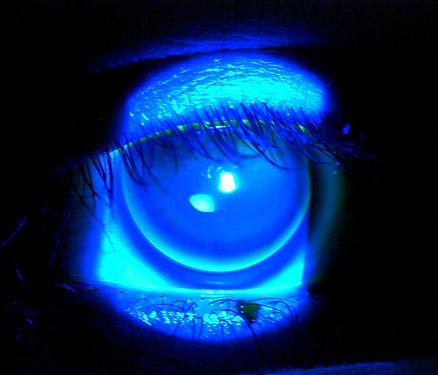 Contact Lens Specialist Arizona.jpg