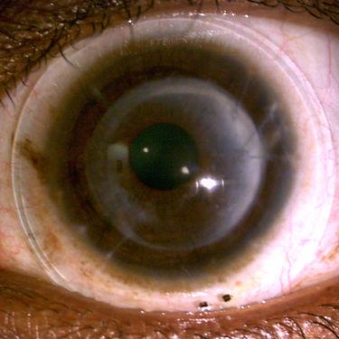 corneal transplant scleral lens arizona scottsdale