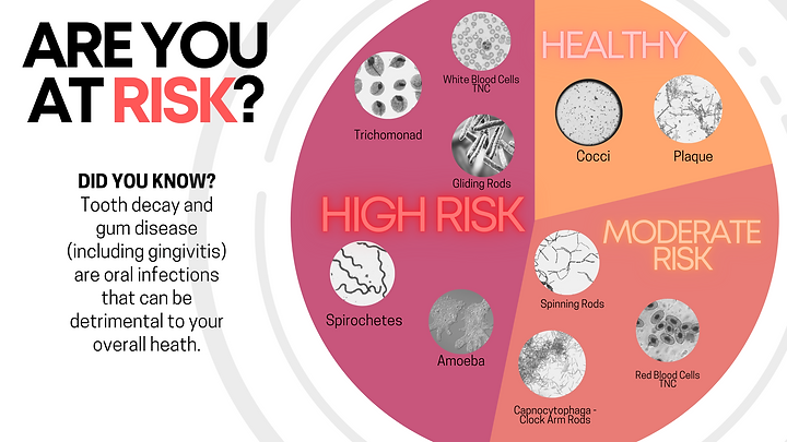 Risk (1).png