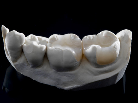What is Biomimetic Dentistry and How Can it Help You?