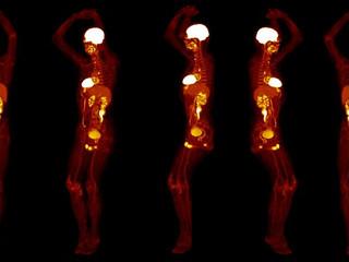 Engenheiros desenvolvem aparelho de tomografia que escaneia o corpo todo em segundos