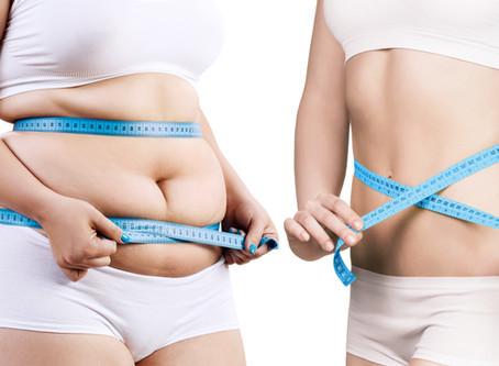 Do You Need Bariatric Surgery?