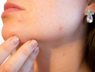 Fight Back Against Acne: 4 Tips For Sensitive Skin