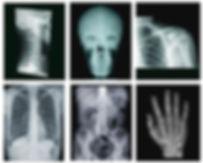 x-ray-32d9mdxejy823lphffin0g.jpg