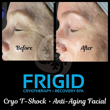 Cryo T Shock Anti-Aging Facial Before and After