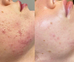 Dermalinfusion is non-invasive and a great treatment option for various skin concerns such as aging,