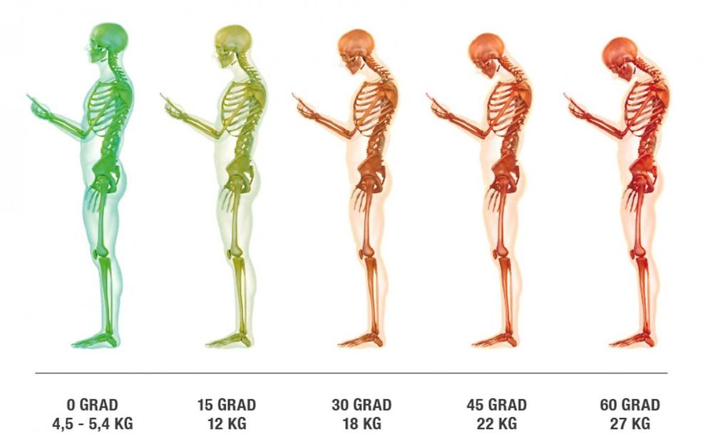 Handy-Nacken Belastung Grafik