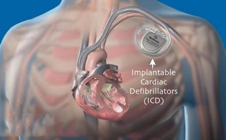 """Abbott""藍牙植入式心臟去顫器獲FDA批准,連結app監控促遠距醫病溝通"