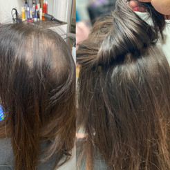 Crown Extensions