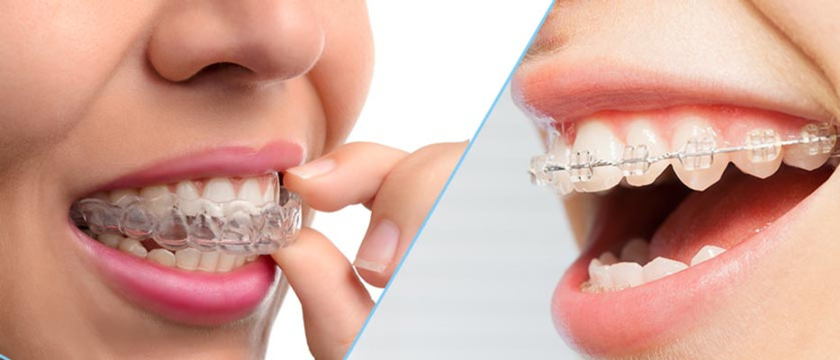 """Best dental braces clinic in UAE"""