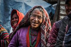 mujer sonrisa sin dientes.jpg
