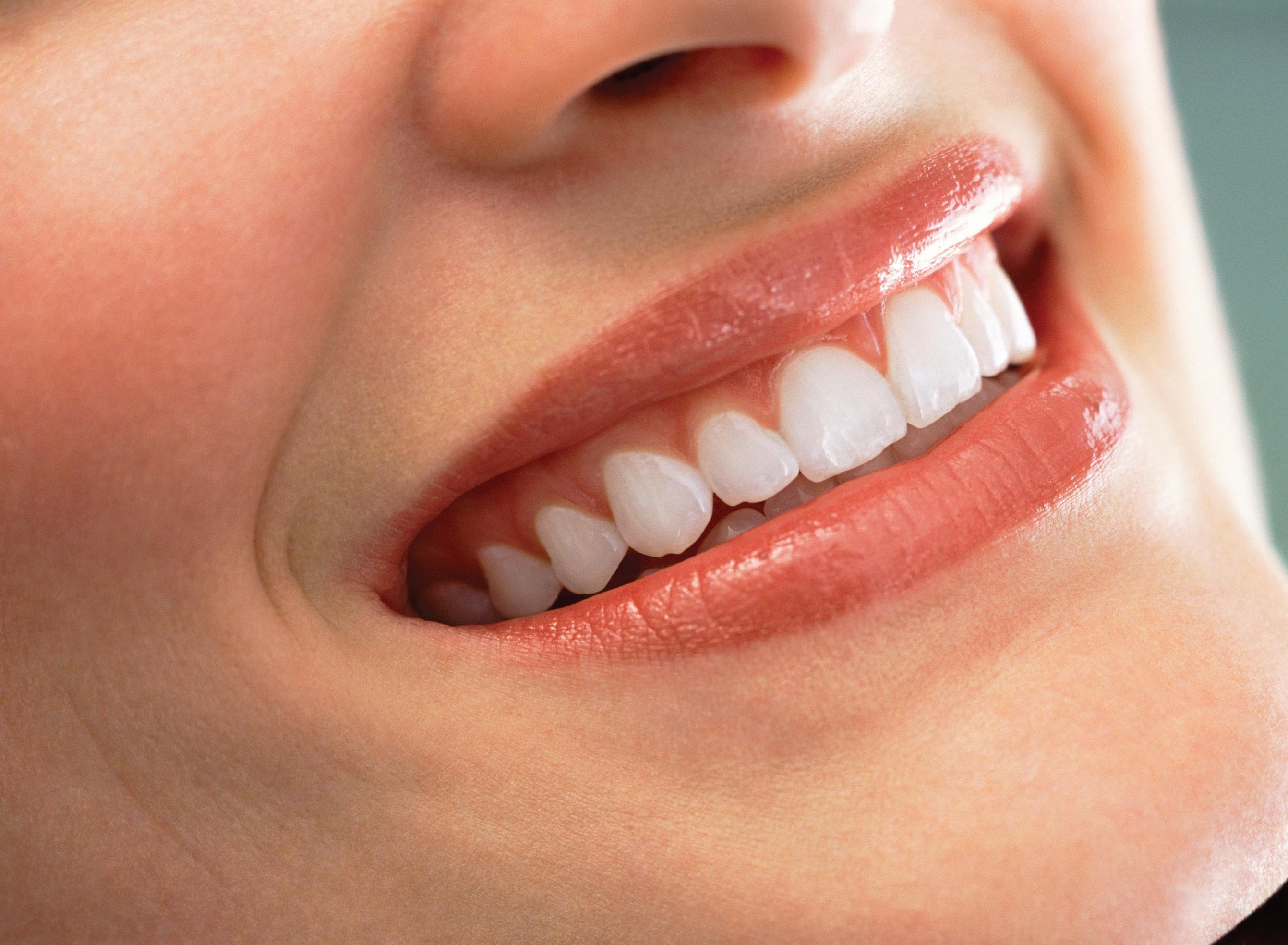 Tratamento De Clareamento Dental Zandona Odontologia Dentista Em