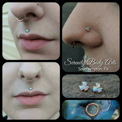 Healed Nostril and Philtrum
