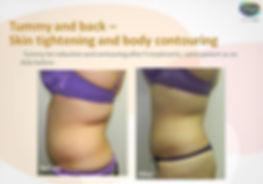 lipofirmpro1 stomach and back.JPG