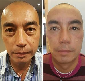 B&A_LipofirmPRO Facial - Copy.PNG