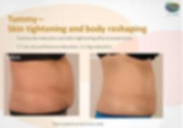 lipofirmpro3 stomach.JPG
