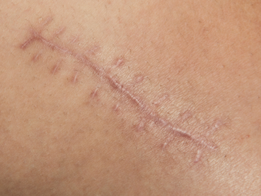 Treating Painful Scar Tissue on the Spine