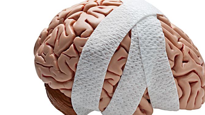 Head Games - Concussion