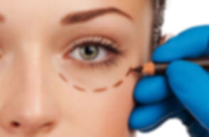 oculoplasty.jpg