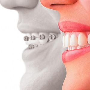 Ortodoncia Invisible con Alineadores