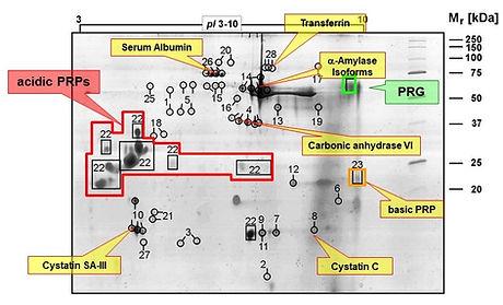 SR_Website_Salivary-Proteomics_2-D-Gel -