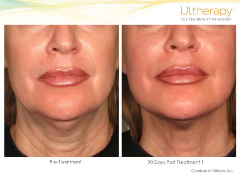 ultherapy-before-and-after.jpg