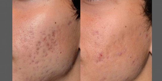 PicoSure-Focus-before-and-after-2-e14277