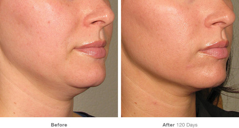 before_after_results_under-chin18.jpg