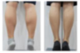 BOTOX瘦腿.PNG