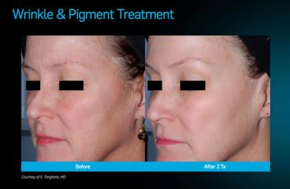 picosure wrinkle.jpg