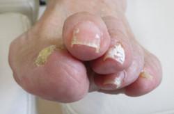 白癬の爪(表面)