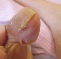 伸びすぎてくい込んだ爪 カット後