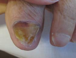 固い肥厚爪 施術後