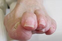 白癬の爪(表面) 除去後