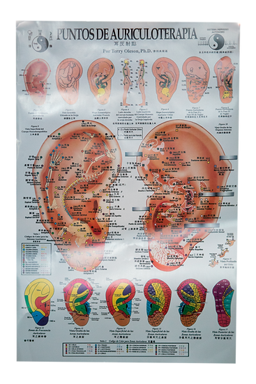 "Póster ""Gráfica de Auriculoterapia"""