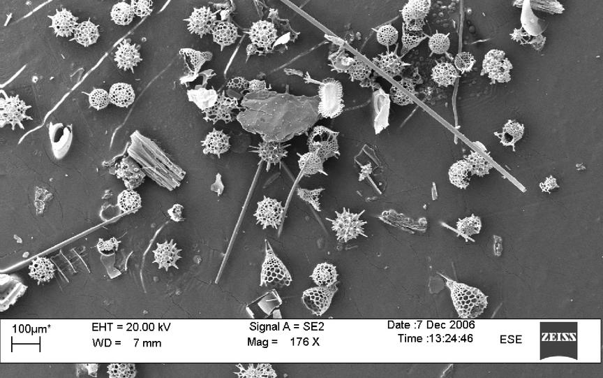 Radiolaria. Microscopy photo: Erichsen / Heldal