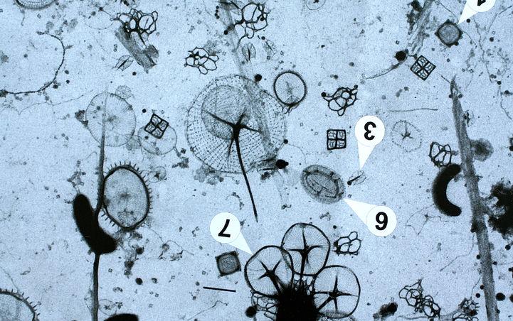 Mikroskopifoto.