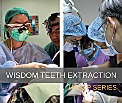 Wisdom Teeth Thumbnail.png