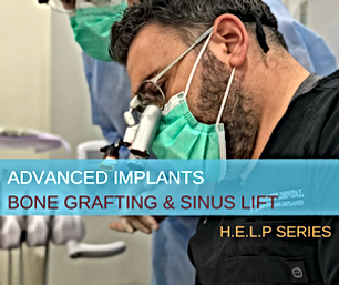 Advanced Implants Thumbnail.png