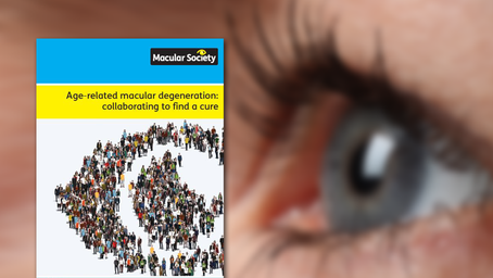 Urgent call for more funding into macular research