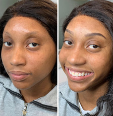Before & After Microblading + Shading