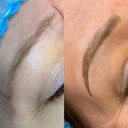 Before & After Combo Brow