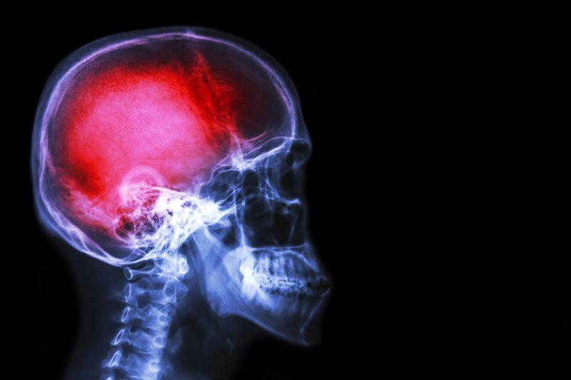 pain-brain_custom.jpg