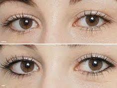 Eyeliner - Before and After Procedure.jp