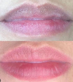 Lip Correction Prior to Final Touch-up